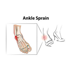 ankle sprain injury from wearing high heels vector image