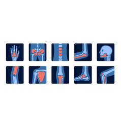 X-rays human joint anatomy with pain parts x vector