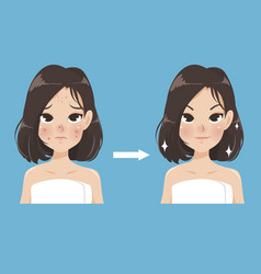Compare acne face vector