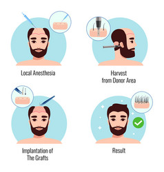 hair transplantation design concept vector image