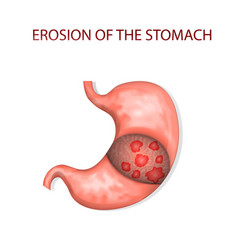 erosion of the stomach vector image vector image