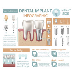Dental implant tooth care medical center dentist vector