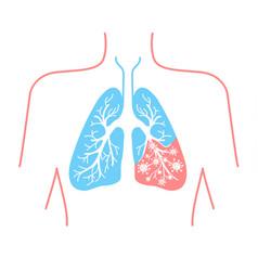 Icon lung disease pneumonia vector