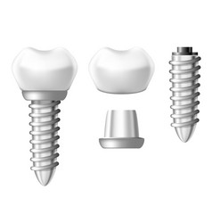 dental implant component parts - tooth denture vector image