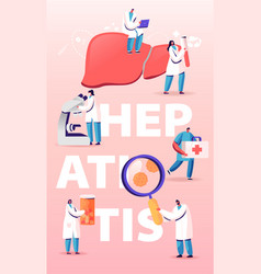 hepatitis medical diagnosis concept tiny doctors vector image