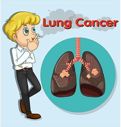 Man smoking and lung cancer vector