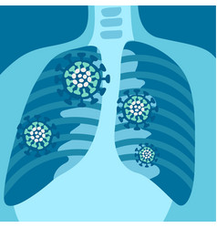 X-ray respiratory system with symptoms vector