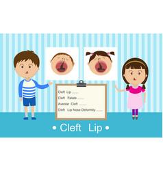 Cleft lip vector