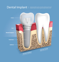 Human teeth and dental implant vector