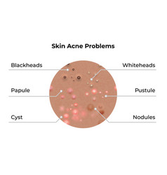 Skin acne types and face pimples for dark skin vector