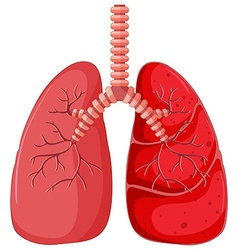 Lung diagram with pneumonia vector