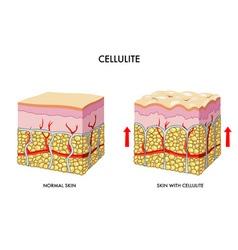 cellulite vector image
