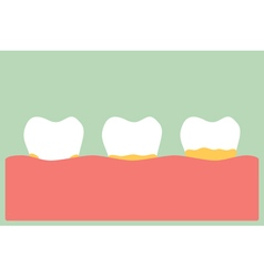 Periodontal disease with plaque or tartar vector