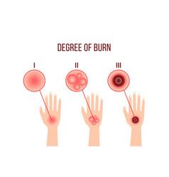 Infographics different degrees burn vector