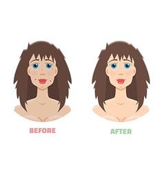Cosmetic peeling Laser peeling before after vector image