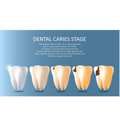 dental caries stages medical poster banner vector image
