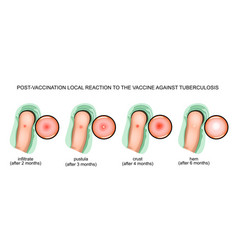 Response to vaccination against tuberculosis vector