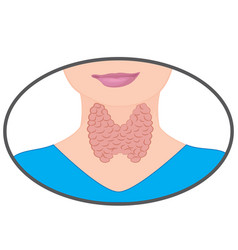 Enlarged thyroid endocrine disfunction vector