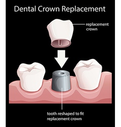 A dental crown replacement vector image