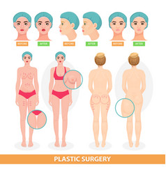 plastic surgery patient woman before vector image vector image