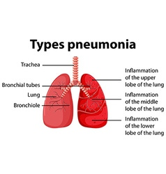 Diagram showing types pneumonia vector