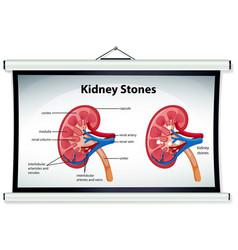 Kidney stones symptoms cartoon style infographic vector