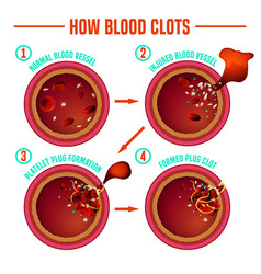 Blood clotting process vector
