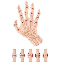 Rheumatoid arthritis in human hands vector image