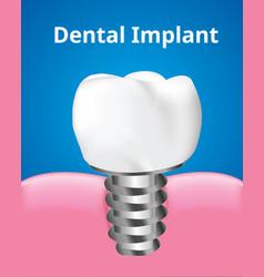 Dental implant screw with gum dental care concept vector