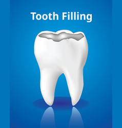 Tooth filling dental care concept realistic vector