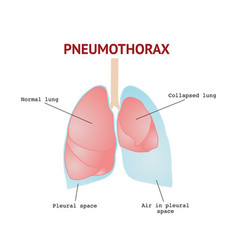 Collapsed lung or pneumothorax lungs disease vector