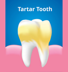 Tartar tooth with gum dental care concept vector