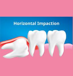 Wisdom tooth horizontal impaction vector