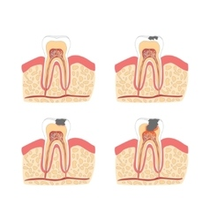 Cartoon tooth with stages dental caries vector