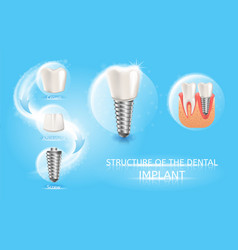 Tooth replacement with dental implant chart vector