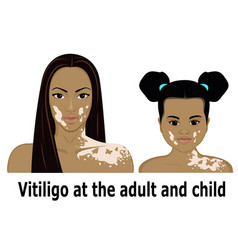 vitiligo at the adult and child vector image vector image