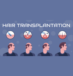 hair transplantation steps vector image