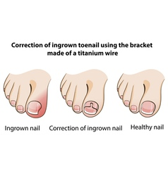 Correction of ingrown nail vector image