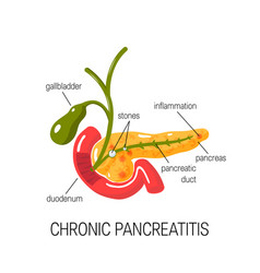 Chronic pancreatitis concept vector