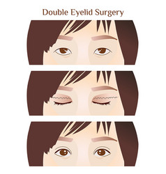 Step narrow-eyed to double eyelid surgery vector