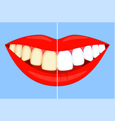 Teeth whitening concept on smile vector