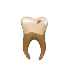 old sick human tooth with caries isolated on white vector image