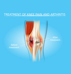 Knee pain and arthritis treatment chart vector