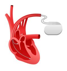 pacemaker cardio stimulator icon vector image
