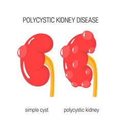 Polycystic kidney disease vector