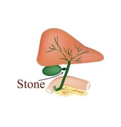 Stone bile duct Gallbladder duodenum pancreas vector