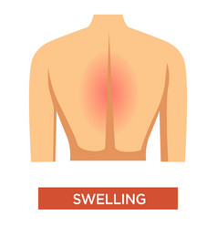 swelling in back symptom arthritis in person vector image