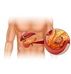 Pancreas cancer in human body vector image vector image