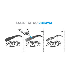 Laser permanent makeup removal stages eyebrow vector