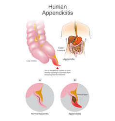 Human appendicitis a blocked by a piece of stool vector